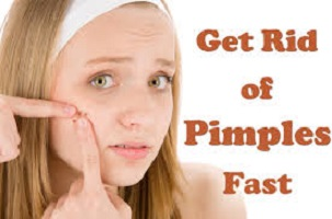 How to get rid of pimples as fast as possible